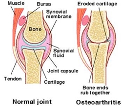normal-and-osteoarthritis-joint-a